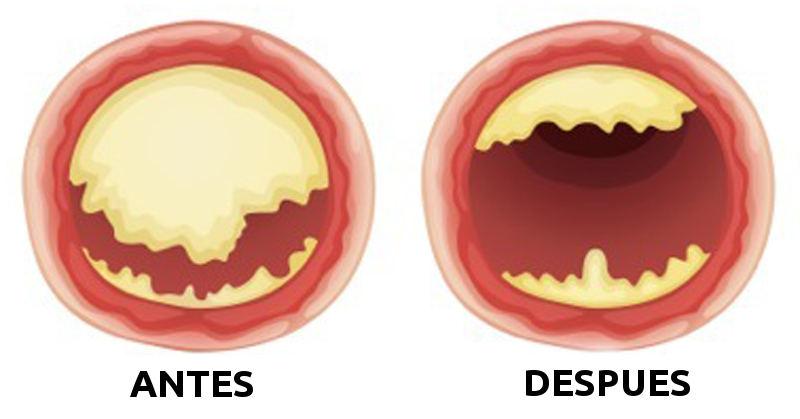 colesterol nueces